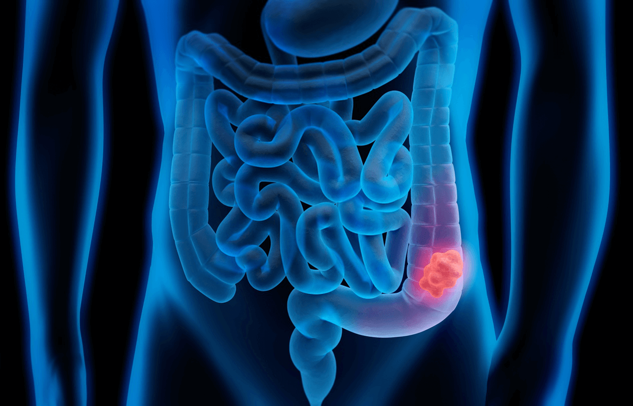 Screening for bowel/gastrointestinal cancer